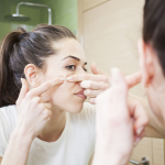 Acne Treatments For Adults Are More Lenient