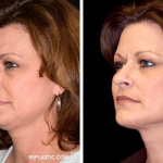 Why Is It Worth It To Go For A Face Lift Procedure?