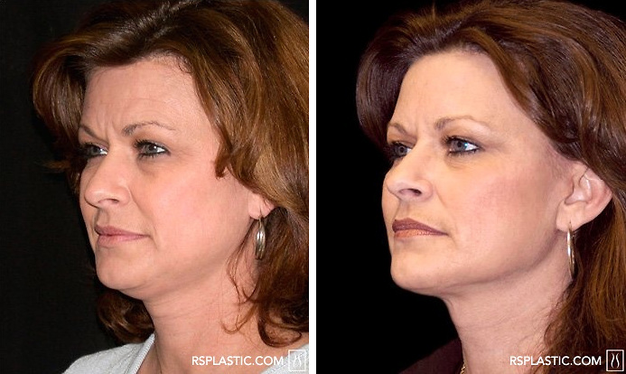 Face Lift & Neck Lift Surgery : Where to Get a Face Lift ...