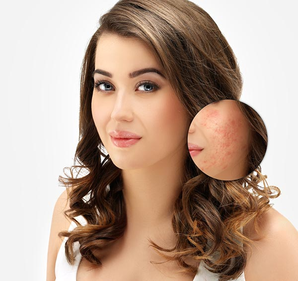 Get Rid Of The Unwanted Acne: 5 Easy Solutions