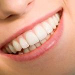 7 Reasons Why You Should Choose Cosmetic Bonding