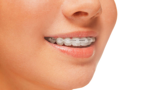 Adult Braces: Why You Should Go For Them