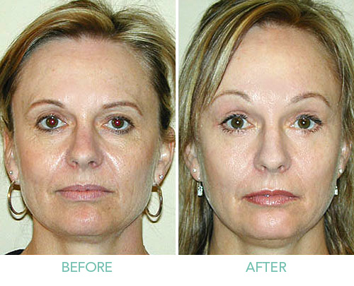 Understand The Actual Procedure Of Browlift