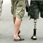 Bionic Prosthetics: A Great Achievement Of Medical Science And Technology