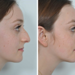 The Latest Trend In Rhinoplasty In Dubai