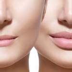 Brow Lift: Look Young And Smart Through A Simple Surgical Process