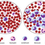 How Leukaemia Is Treated With A Lot Of Precision And Care?