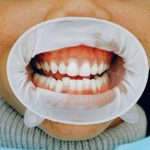 Oral Health Concerns That Come up As You Age