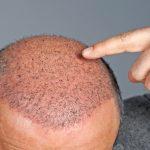 Hair Transplant: Myth vs Reality