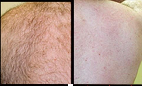 Removing Back Hair With HairFree No.1