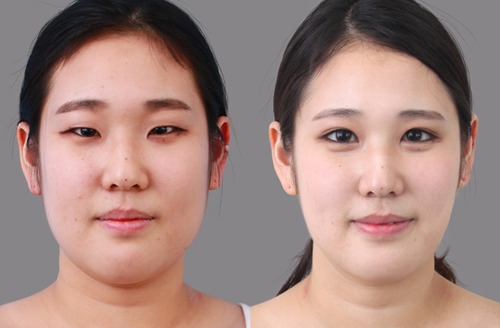 Modalities Of Eyelid Surgery