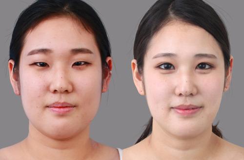 Modalities Of Eyelid Surgery