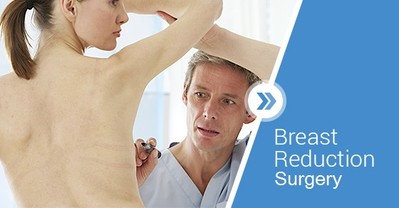 breast reduction surgeries