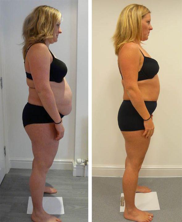 3D Liposuction