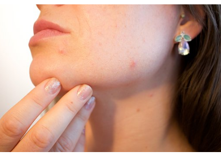 5 Reasons Of Adult Acne You Don't Know