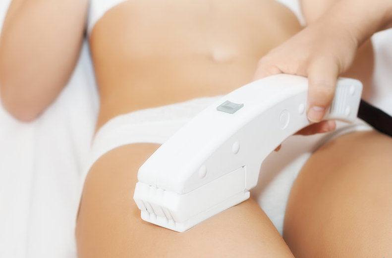 A Hair Laser Removal