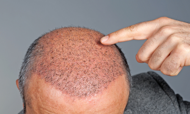 Hair Transplant: Myth vs Reality