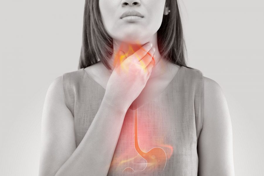 10 Natural Remedies For Acidity & Heartburn